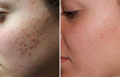 what can reduce acne scars